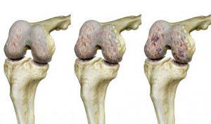 Porckopás, arthrosis formái