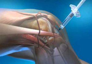 Porckopás, arthosis kezelése